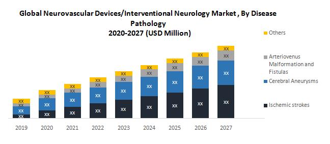 Global Neurovascular Devices-Interventional Neurology Market